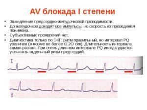Посмотрите пожалуйста ЭКГ, замедление АВ проводимости