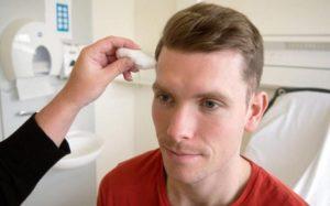 Неврит лицевого нерва после удаления зуба