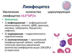 Лимфоцитоз, гранулопения, микроциты