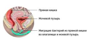 Кишечник давит на мочевой