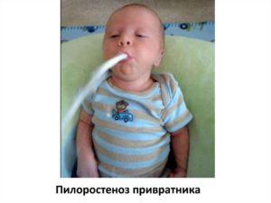Ребенок срыгивает кислым после смеси