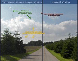 Как лечить визуальный снег?