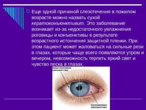 Слезится глаз с внешней стороны