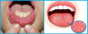 Белые точки во рту