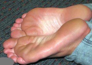 Потливость, сильно потеют ладони, ноги, пах, горят стопы