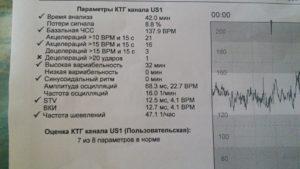 Расшифровка результатов КТГ