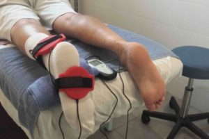 Снятие гипса раньше срока при переломе лодыжке