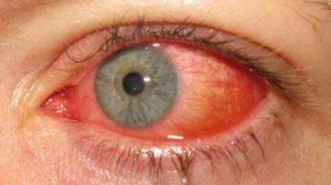 На спайке конъюнктивы глаза воспалительный очаг под слизистой
