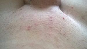 Сыпь на малых половых губах