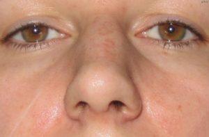 Опухает бок носа