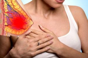 Дискомфорт в грудных железах