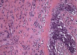Фиброаденомы с пролиферацией эпителия