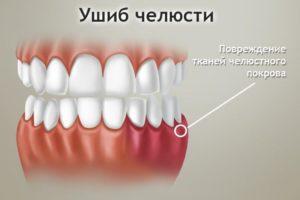 Онемели зубы после удара