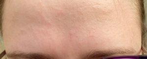 Бесцветная сыпь на лице