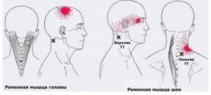 Боль шее слева, отдающая в голову