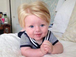 Разный цвет волос на голове при рождении