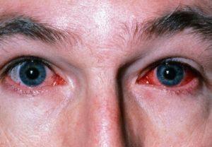 Краснеет глаз и болит голова