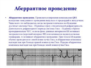 Аберрантный желудочковый комплекс, аберрантный суправентрикулярный комплекс