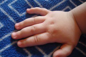 Твердые прыщики у ребенка на руке