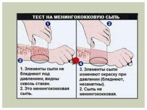 Сыпь при менингите