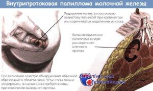 Выделения из молочной железы