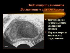 Лечение после удаления эндометриоидной кисты