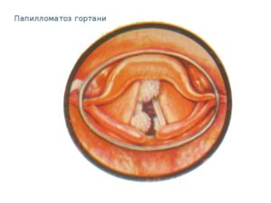 Папилломы в горле