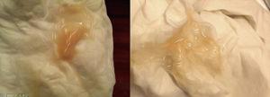 Бледно розовые выделения на 8 неделе беременности и постоянные тянущие боли