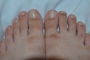 Жесткая кожа на пальцах ног