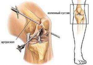 Боль в коленном суставе после артроскопии