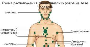 Увеличенные лимфоузлы по всему телу