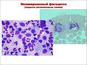 Кокко-бациллы фагоцитоз незавершенный