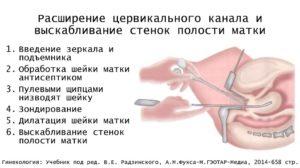 Расширение цервикального канала 2мм при беременности