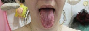 Сбоку на языке справа белый прыщик