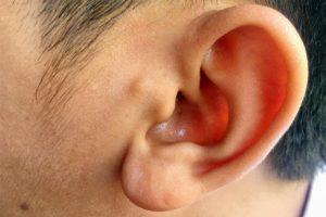 Кровоподтек на мочке уха