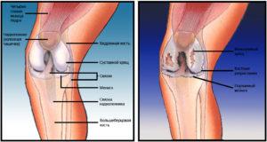 Боль под коленом