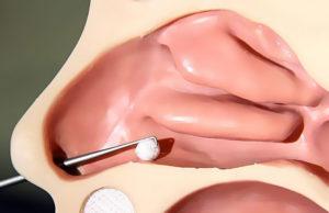 Ощущение инородного тела в носу