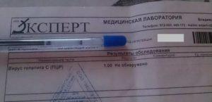 Гепатит B расшифровка количественного ПЦР