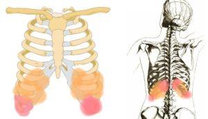 Болят ребра и спина