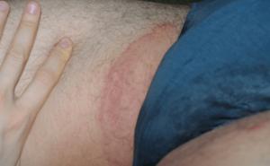 Белые пятна в области паха
