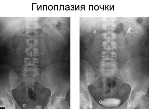 Дистопия и гипоплазия почки плода