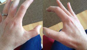 Дергается указательный палец левой руки