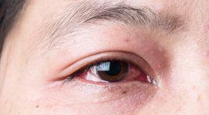 При плаче слезиться только правый глаз