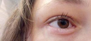 Растер глаз и опухло нижнее веко