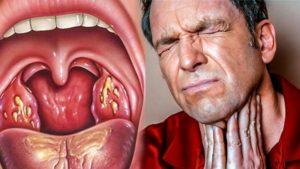 При вдохе боль и холод в горле