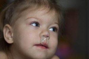 У ребёнка на улице сопли и слезы
