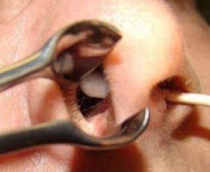 Дырочка в носовой перегородке что делать