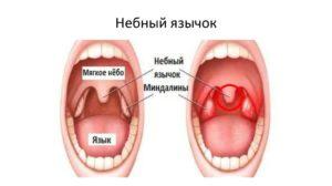 Правая миндалина и небный язычок срослись