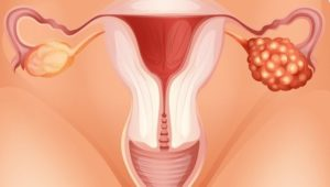 Боли в яичниках и тянет поясницу