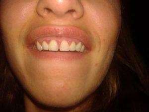 Воспалилось небо между передними зубами